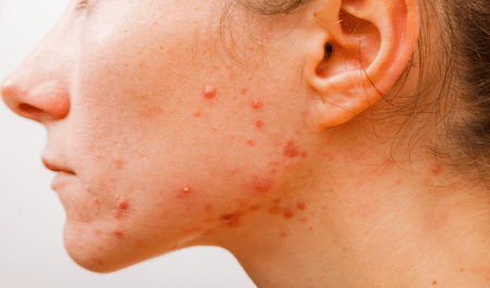 remedies for pimples and dark spots