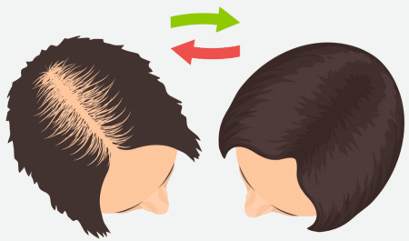 how to grow hair back faster on bald head