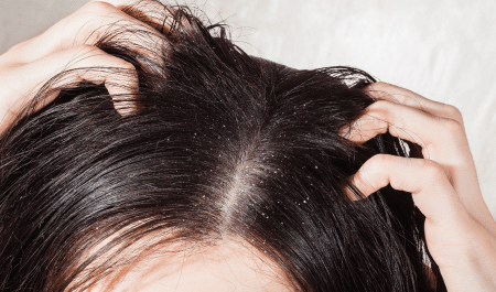 Home remedies for dandruff and itchy scalp