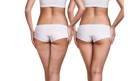 how to remove cellulite from thighs and hips