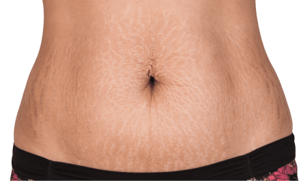 life hacks to remove stretch marks