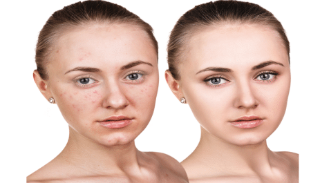 how to get rid of acne overnight naturally