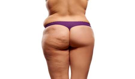 how to get rid of cellulite on thighs and bum at home