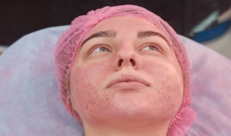 how to remove redness from face naturally