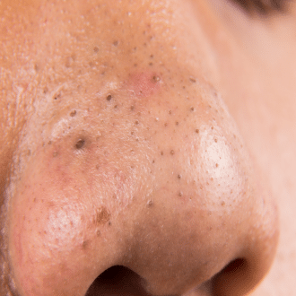 blackheads and whiteheads removal on nose