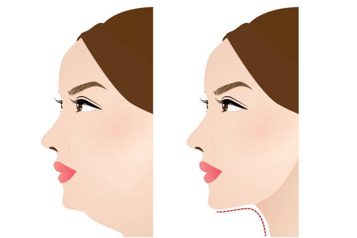 Double chin before and after image