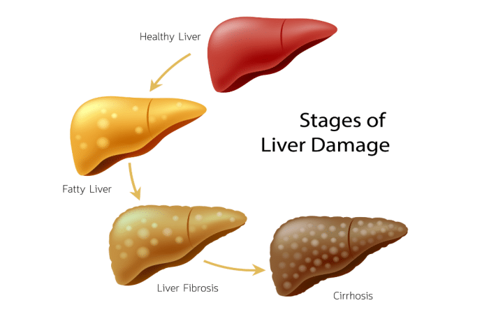 This image is a demonstration of different liver diseases.