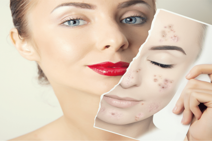 adult acne causes
